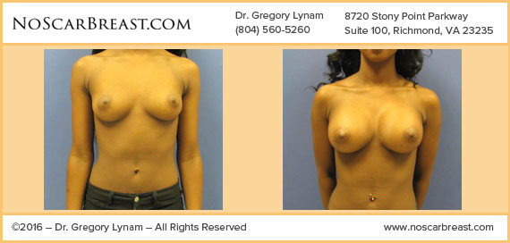 290cc Moderate Plus Silicone Implants Inframammary Incision Richmond Case Study - Before and After Patient Result by Dr Lynam and NoBreastScar Team.