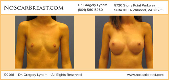 Silicone 300 cc High Profile Implants, Inframammary Incision Richmond Case Study - Before and After Patient Result by Dr Lynam and NoBreastScar Team.