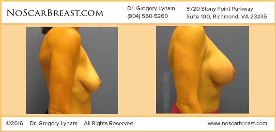 Breast lift with 325 cc Moderate Plus Saline Implants Richmond Case Study - Before and After Patient Result by Dr Lynam and NoBreastScar Team.