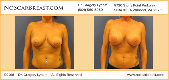 450 cc Mod Plus Silicone Implants Richmond Case Study - Before and After Patient Result by Dr Lynam and NoBreastScar Team.
