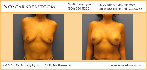 Breast Lift with 371cc Silicone Implants Richmond Case Study - Before and After Patient Result by Dr Lynam and NoBreastScar Team.