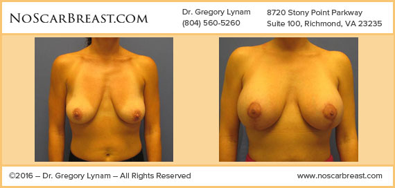 Breast lift with Silicone Implants 325 CC Richmond Case Study - Before and After Patient Result by Dr Lynam and NoBreastScar Team.