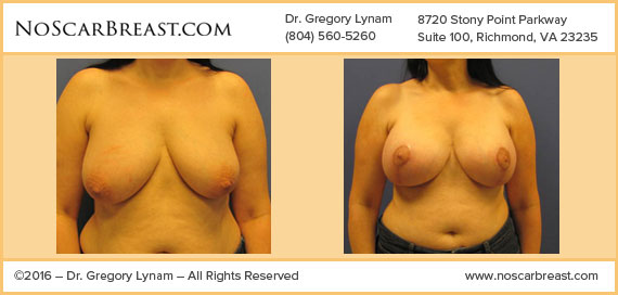 425cc Saline Implants Richmond Case Study - Before and After Patient Result by Dr Lynam and NoBreastScar Team.