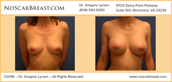 Trans ax Saline 350 cc High Profile Saline Implants Richmond Case Study - Before and After Patient Result by Dr Lynam and NoBreastScar Team.
