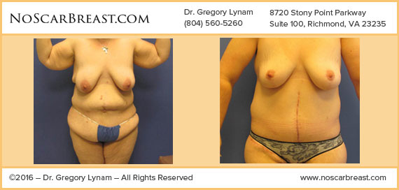 Body Lift Richmond and Breast Lift Richmond Case Study - Before and After Patient Result by Dr Lynam and NoBreastScar Team.